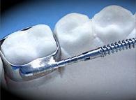 European Orthodontic Product