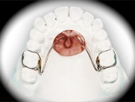 European Orthodontic Product